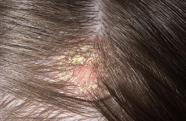 Scalp Care Tips for Men Scalp Care Tips for Men new images