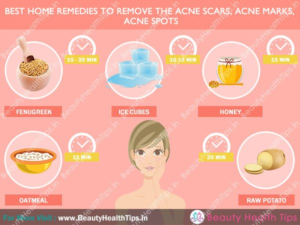 spot treatment for acne scars