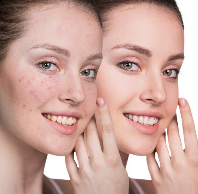 Homemade Ayurvedic face packs for skin and face