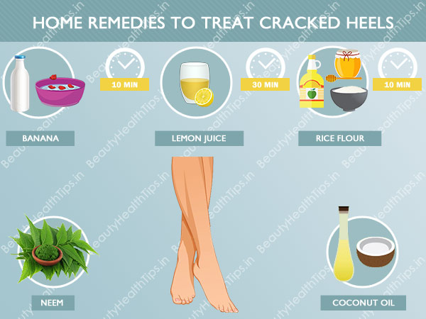 How To Treat Cracked Heels Foot Ways To Get Smooth Heels And Feet