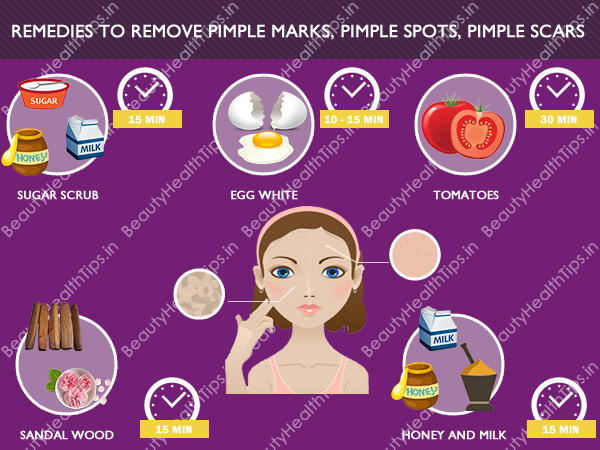 How To Remove Pimple Marks Naturally At Home In Tamil