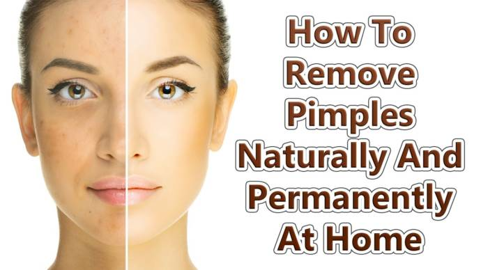 How To Get Rid Of Red Bumps On Face Naturally