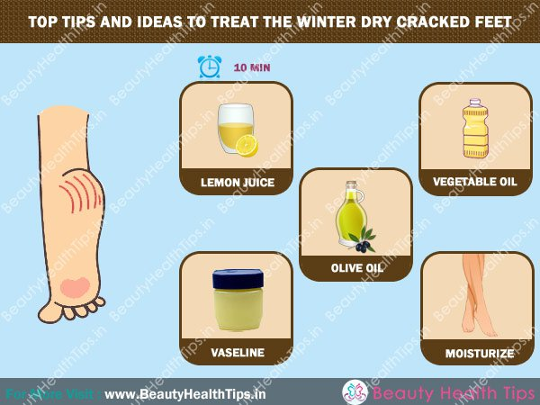 How to Heal Cracked Feet Top 10 Home Remedies