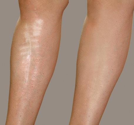 How To Cover Scars On Legs With