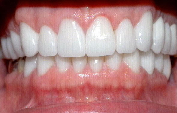 How To Treat Black Gums How To Make Gums Pink