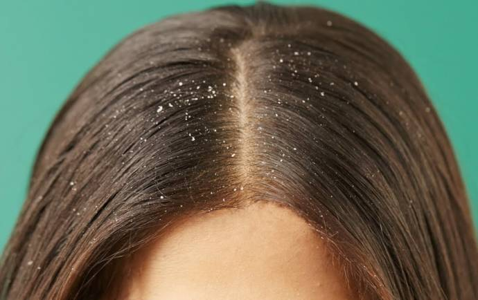 how to stop itchy scalp from extensions