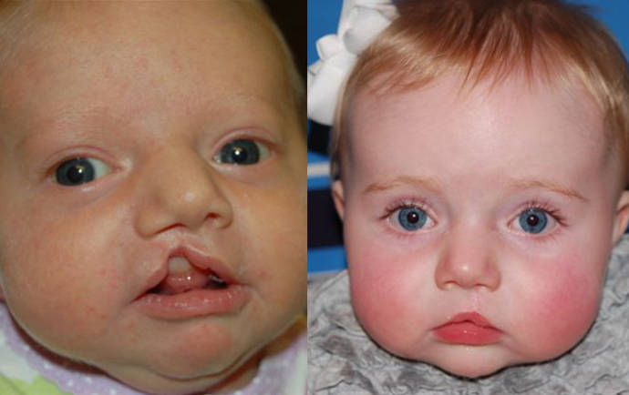 baby with cleft palate choice image diagram writing sample ideas and guide 2012 club car precedent repair manual 2009 club car precedent repair manual