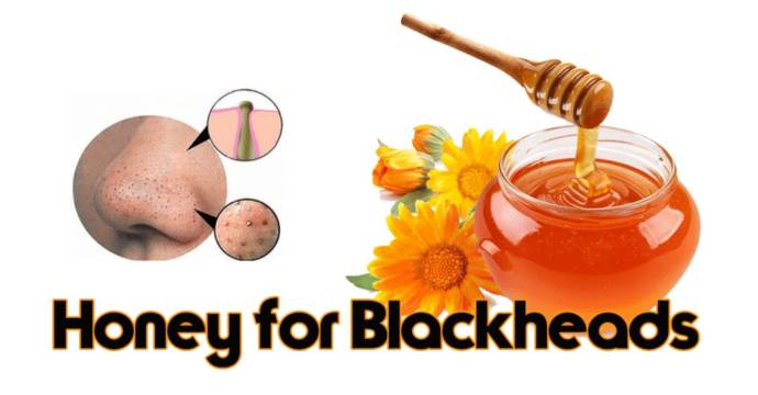 Image result for blackhead and honey