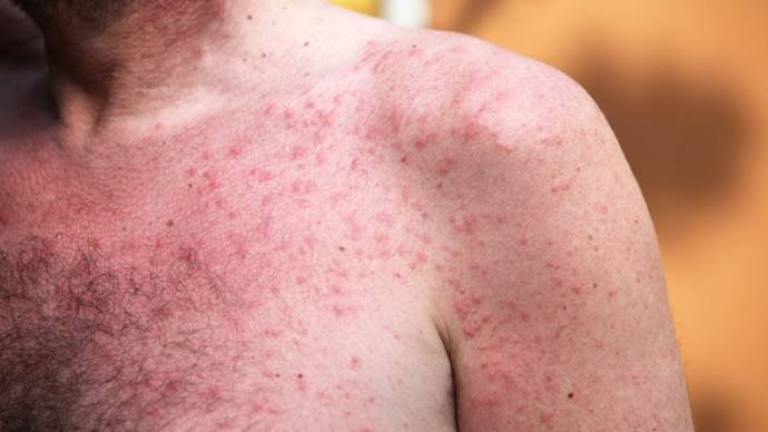 How to get rid of prickly heat rashes overnight?