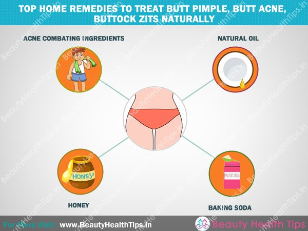 how to remove acne on buttocks, butt pimples, buttock zits