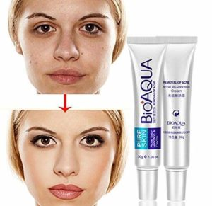 BIOAQUA Anti Acne Scar Mark Remover Removal Oil Control Shrink Pores Treatment Cream