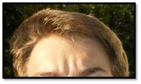 Myth 1 Hair Transplant is not permanent