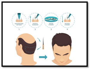 Myth 5-1 Hair Transplant is painful and leaves a scar