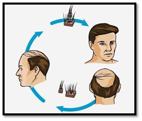 Myth 5 Hair Transplant is painful and leaves a scar