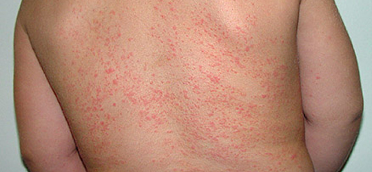 What Are The Causes Symptoms And Treatment Of Prickly