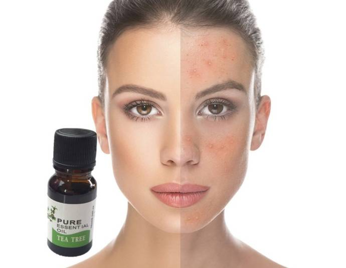 How To Get Rid Of Acne Scars With Tea Tree Oil Tea Tree Oil For