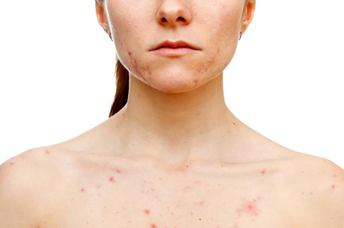 How to get rid of redness acne