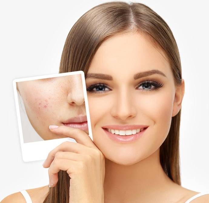 Top Home Remedies To Reduce Acne Scars