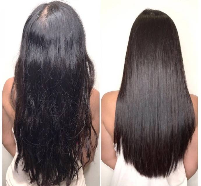 What Is Botox Hair Treatment Cost Pros Cons Beauty Health Tips