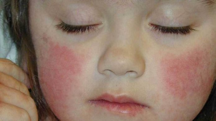 fifth disease in children